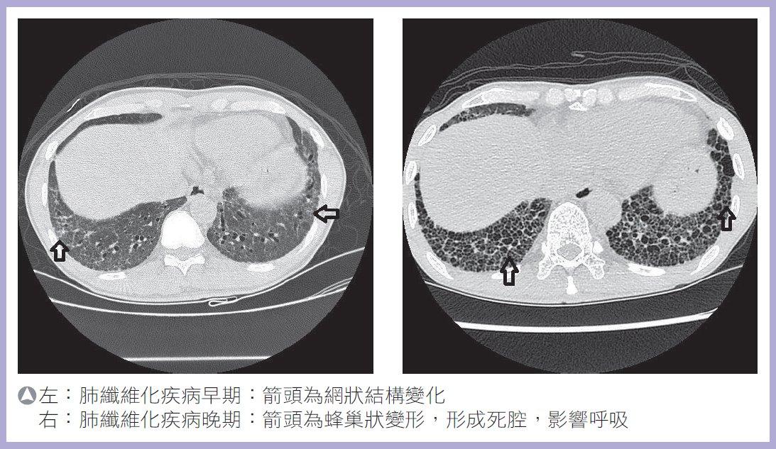 給生命一個重生的機會~肺臟移植