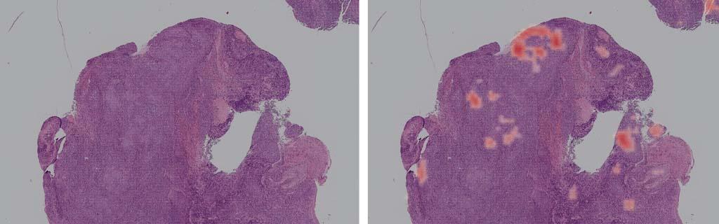 病理診斷大進展~影像數位化與人工智慧應用注入新活力
