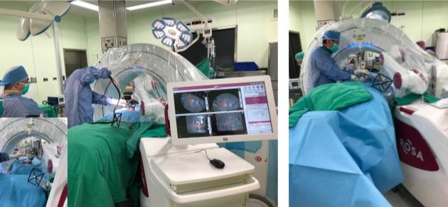 ROSA 機器手臂崛起-精準的脊椎治療手術