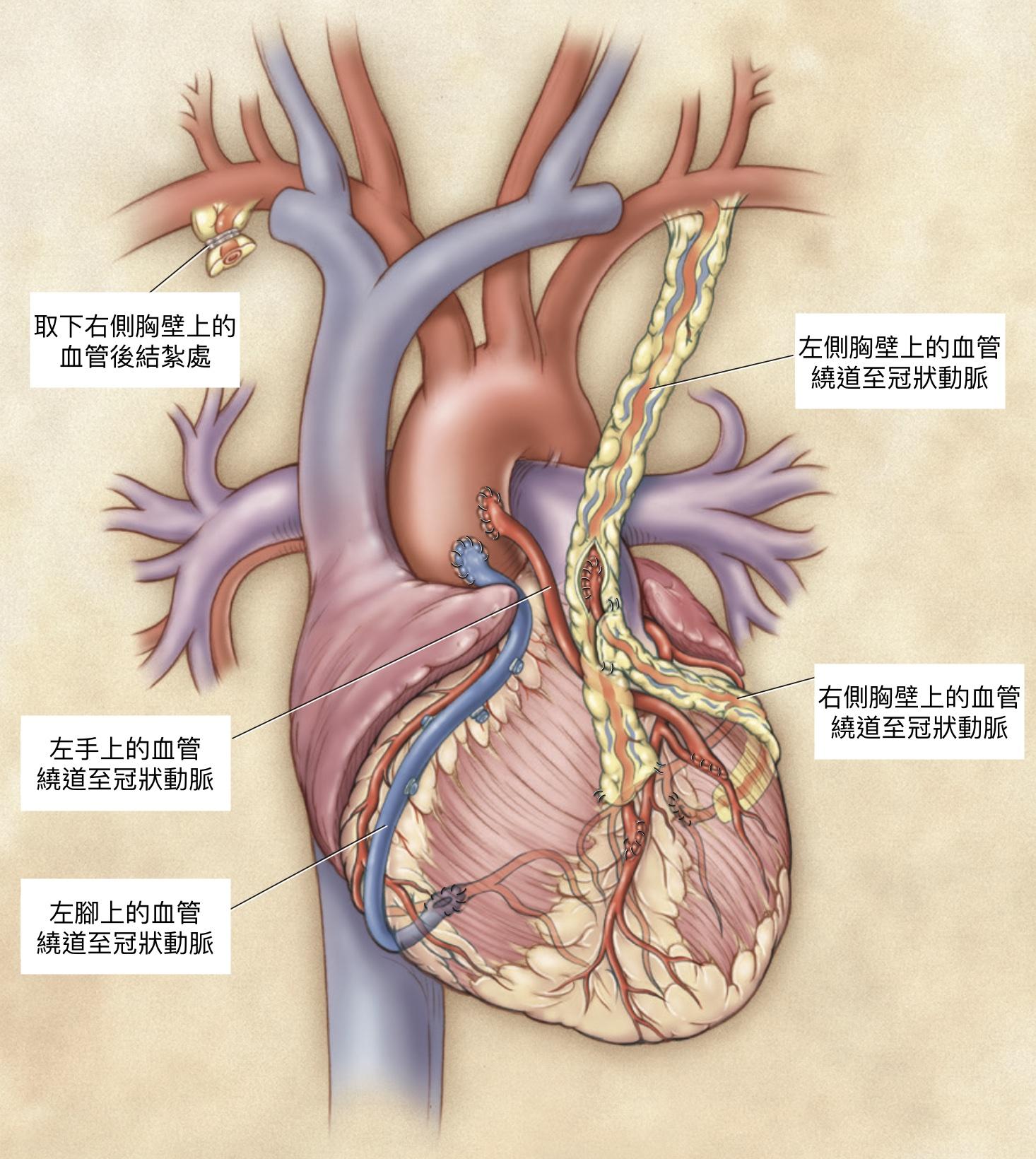 當代的冠狀動脈繞道手術